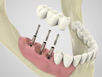 un disegno tecnico di una protesi dentale con delle viti