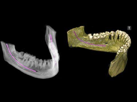 Estrazione di denti del giudizio