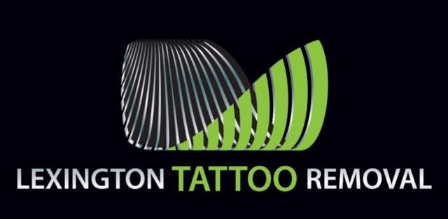 Tattoo Removal | Kentucky | Lexington Tattoo Removal