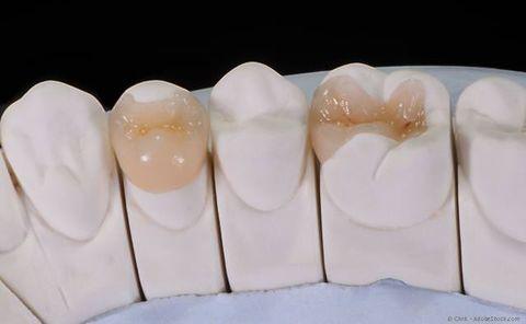 Verfärbt zahn grau Zahn wird