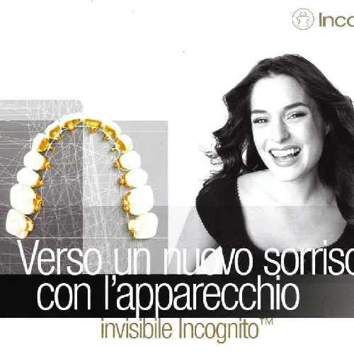 pubblicità apparecchio invisibile Incognito