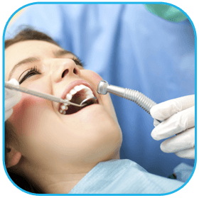 Interventi di pulizia dentale