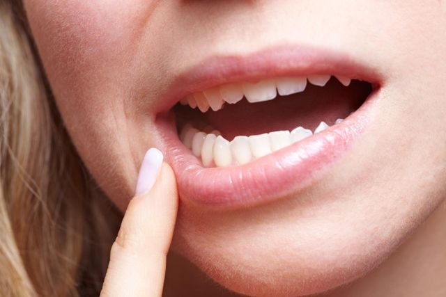 6 COMMON COMPLICATIONS AFTER WISDOM TOOTH SURGERY