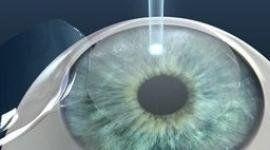 Illustrazione di un occhio durante un'operazione laser