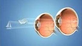 Disegno medico di occhi affetti a micro-monovision