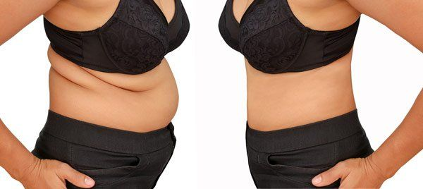 zerona laser weight loss, before and after