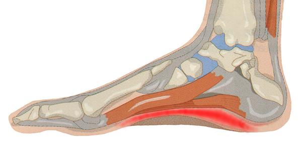 Il trattamento della fascite plantare si basa sul riposo iniziale e sul controllo dell'infiammazione.