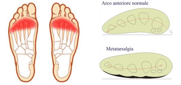 La metatarsalgia è una sindrome dolorosa che si sviluppa sulla regione anteriore della pianta del piede.