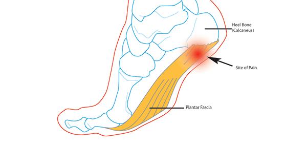 la tallodinia è una sindrome dolorosa abbastanza frequente soprattutto tra gli atleti.