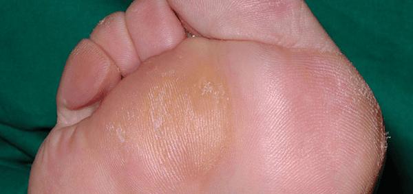 I calli e i duroni sono strati di pelle ispessita e indurita che si sviluppano quando la cute cerca di proteggersi dall'attrito e dalla pressione.