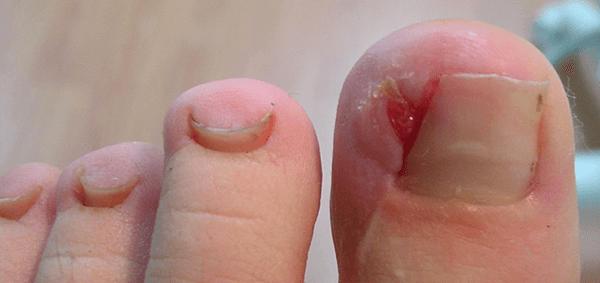 L'onicocriptosi, meglio nota come unghia incarnita.