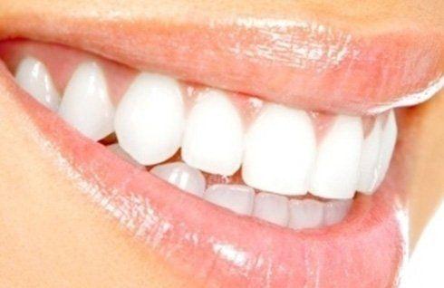 igiene orale dentale