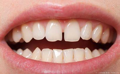 Abgebrochen schneidezahn Zahn abgebrochen:
