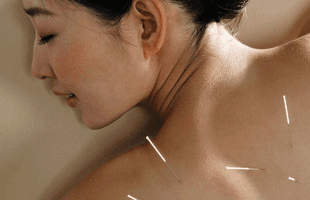 A woman receiving acupuncture treatment