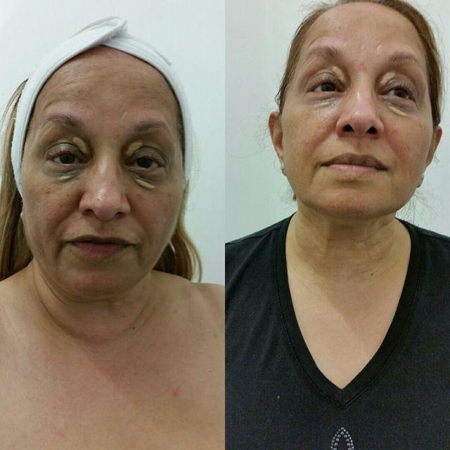 HIFU non-invasive facial treatments at Aesthetic & Laser Clinic
