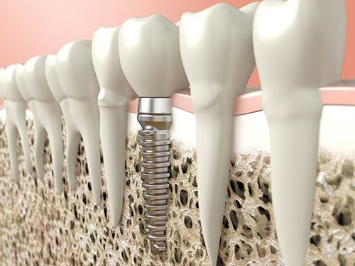 modelli di denti di cui uno con un impianto