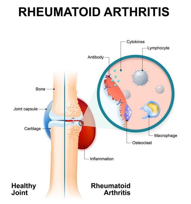 Rheumatoid Arthritis Remedy in Manhattan, New York City from Dr. Louis Granirer Holistic Chiropractor