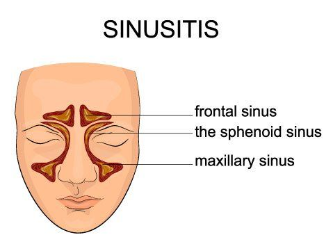 Sinusitis Remedy in Manhattan, New York City