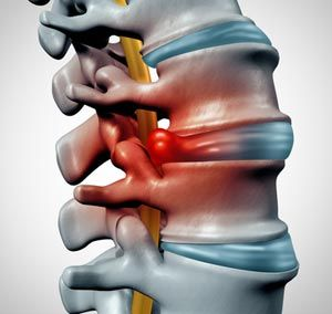 Herniated Disc Treatment NYC - Dr. Louis Granirer Holistic Chiropractor