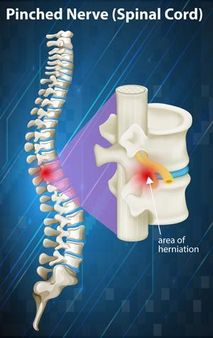 Pinched Nerve Treatments NYC - Dr. Louis Granirer Holistic Chiropractor