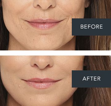 Providence facial fillers