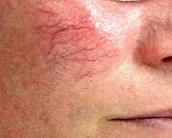 Remove Spider Veins on Face or Nose