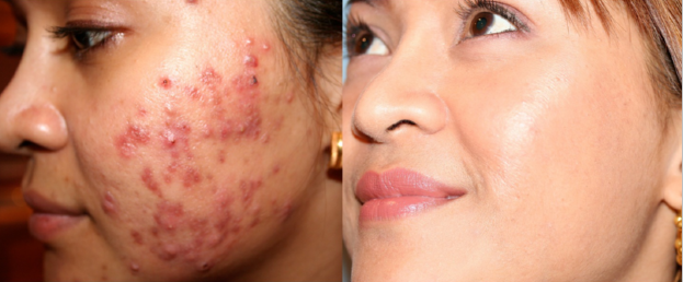 Smoothbeam-Laser-Acne-Treatment-Boston-RI