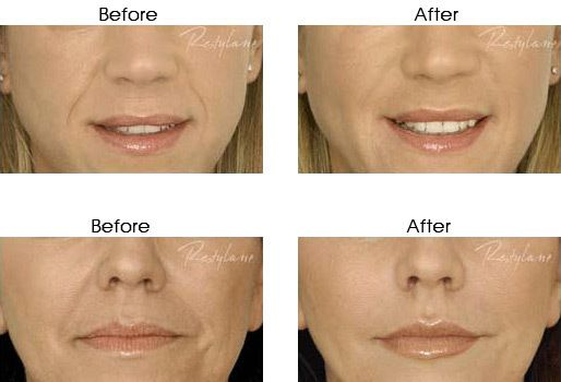 Lip Fillers beforeandafters-1-514x350