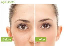 Remove Age Spots or Sun damage on Face in Boston and Rhode Island