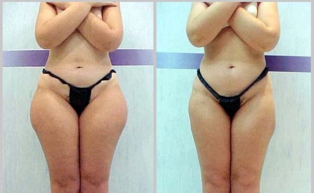 Ultrashape-before-after-outer-thigh