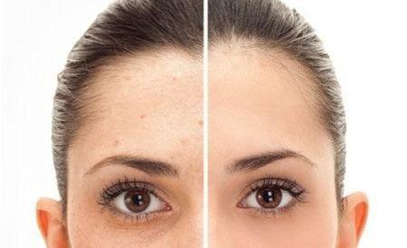 Remove Acne Scars Laser
