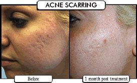Laser for Acne Scars Boston and Rhode Island