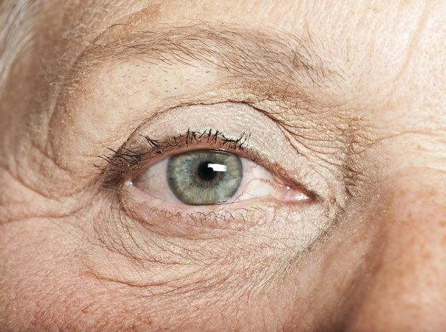 The eye of an older woman