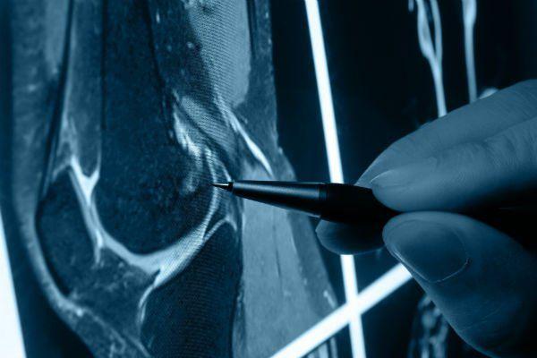 una mano con una penna che indica una radiografia