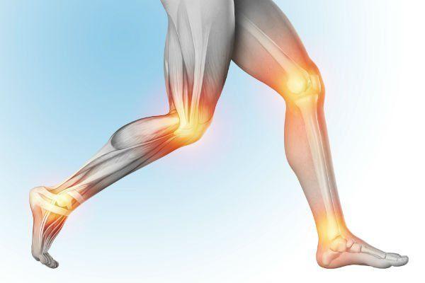 un disegno di due gambe di una persona con le giunture infiammate