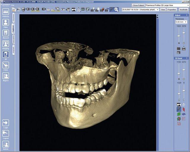 tac 3d denti