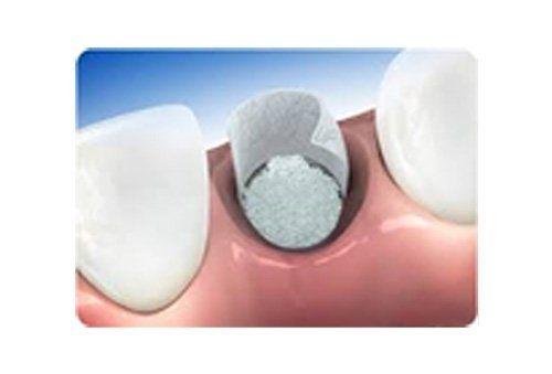 biomateriali denti