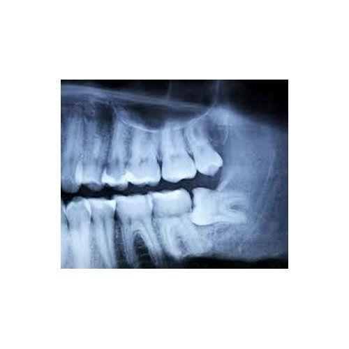 chirurgia dei terzi molari