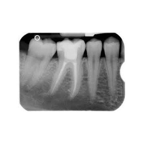 otturazione dei canali dentali