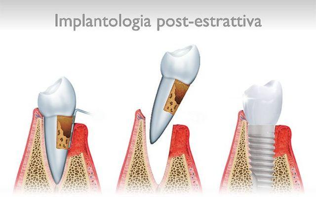 impianto dentale post estrattivo