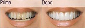 faccette per denti prima e dopo