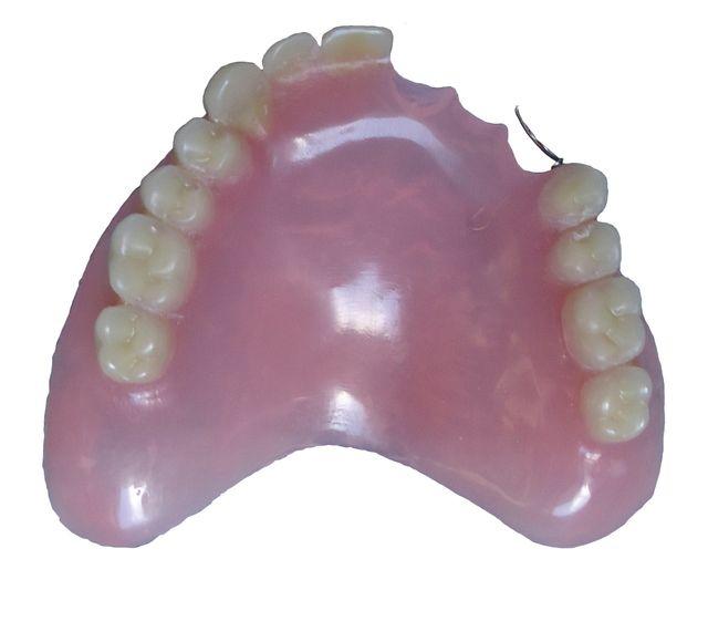 protesi denti parziale
