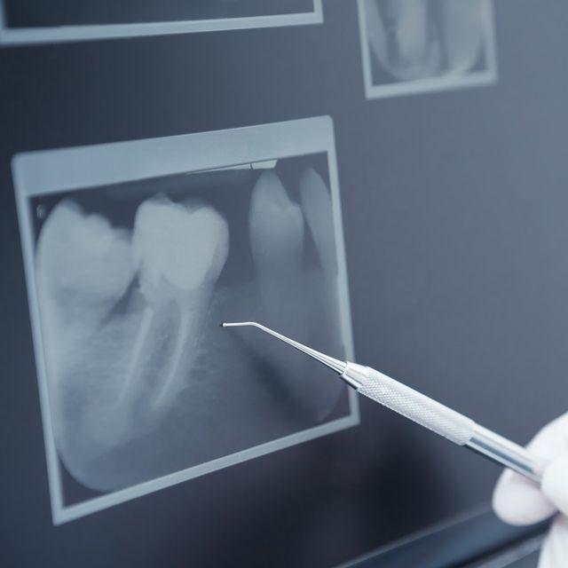 gum disease treatment - South Texas Periodontal Associates