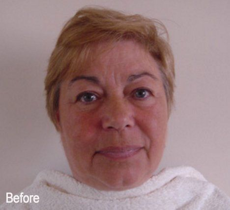 Acupuncture facelift non invasive facelift chafford hundred acupuncture facelift by jennie chews essence of healing in grays thurrock solutioingenieria Image collections