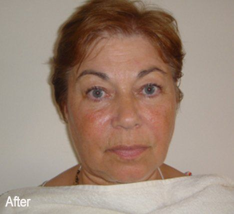 Acupuncture facelift non invasive facelift chafford hundred acupuncture facelift by jennie chews essence of healing in grays thurrock solutioingenieria
