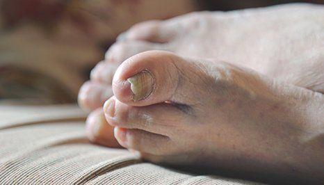 Foot problem