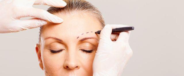 donna chirurgia plastica facciale