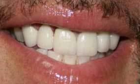 Full smile restoration