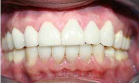 restorative invisalign and crowns, teeth whitening
