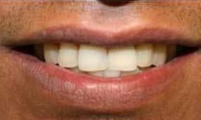restorative dental implant
